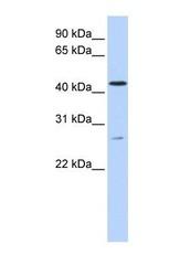 NBP1-59821 - ACBD5