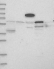 NBP1-90271 - APOBEC1 complementation factor