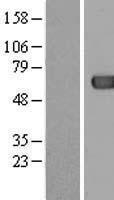 NBL1-07247 - ACOT12 Lysate