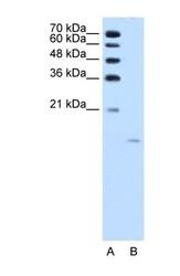 NBP1-55487 - ACP1 / LMW-PTPase