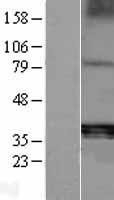 NBL1-07252 - ACP5 Lysate