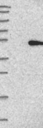 NBP1-89272 - ACP6 / LPAP