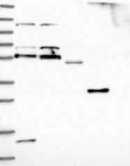 NBP1-85407 - Acrosin-binding protein / ACRBP