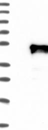 NBP1-86972 - ACTL7B