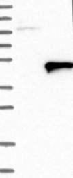 NBP1-86973 - ACTL7B