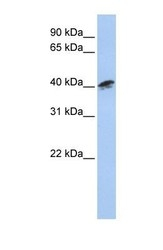 NBP1-53075 - Centractin alpha