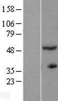 NBL1-07289 - ACTR3B Lysate