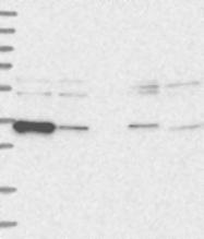NBP1-89000 - ACTR6 / CDA12
