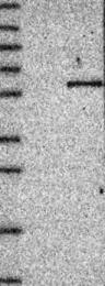 NBP1-89001 - ACTR6 / CDA12