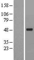 NBL1-07292 - ACTR6 Lysate
