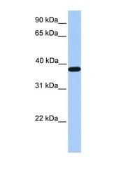 NBP1-54626 - ACTRT2 / ARP-T2