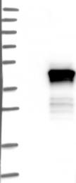 NBP1-89006 - ACTRT2 / ARP-T2