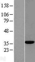 NBL1-07301 - ACY3 Lysate