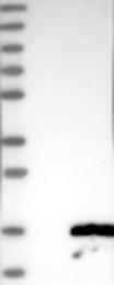 NBP1-86308 - Acylphosphatase 2 (ACYP2)