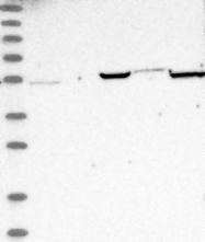 NBP1-91649 - MGC21874