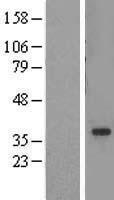 NBL1-16676 - ADA2a Lysate