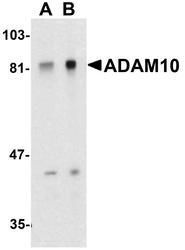 NBP1-76973 - CD156c / ADAM10