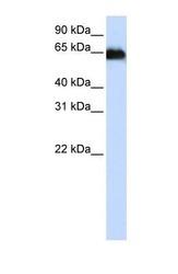 NBP1-59142 - ADAM12 / MLTN