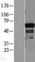 NBL1-07309 - ADAM28 Lysate