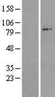 NBL1-07310 - ADAM28 Lysate