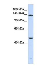 NBP1-57095 - ADAMTS18