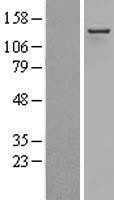 NBL1-07321 - Adenosine Deaminase, RNA-Specific Lysate