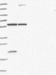 NBP1-82878 - Arginine decarboxylase / ADC