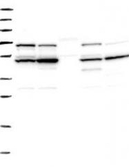 NBP1-85508 - ADCK4