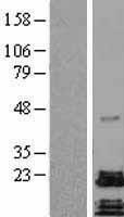 NBL1-07328 - ADCYAP1 Lysate
