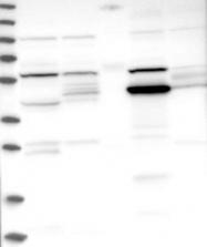 NBP1-83530 - ADHFE1 / HMFT2263