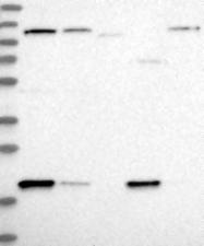 NBP1-89037 - ADI1 / MTCBP1