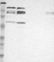 NBP1-89236 - ADNP