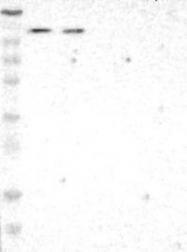 NBP1-81468 - ADNP2