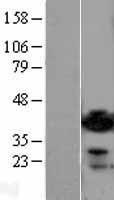 NBL1-07354 - ADP-ribosylarginine hydrolase Lysate