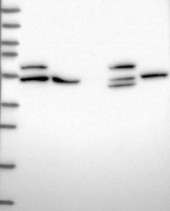 NBP1-91653 - ADPGK