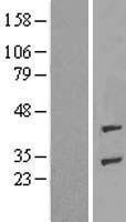 NBL1-07355 - ADPRHL1 Lysate