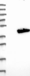 NBP1-88834 - ADPRHL2 / ARH3