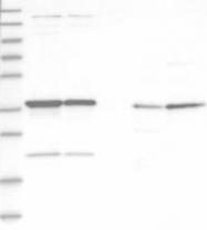 NBP1-88835 - ADPRHL2 / ARH3