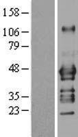 NBL1-07361 - ADRM1 Lysate