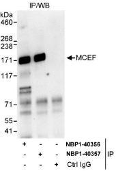 NBP1-40356 - AFF4 / MCEF