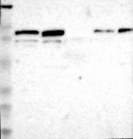 NBP1-87086 - AFG3L2