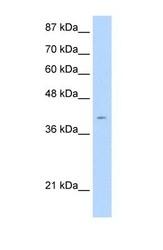 NBP1-59048 - RAGE / AGER