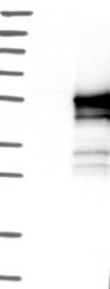 NBP1-83213 - AGFG2 / HRBL