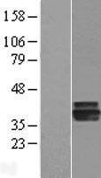 NBL1-07381 - AGMAT Lysate