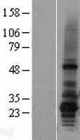 NBL1-07383 - AGPAT2 Lysate