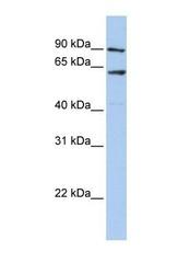 NBP1-57655 - AdoHcyase 2 (AHCYL1)