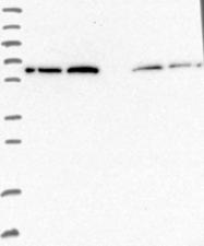 NBP1-83093 - AdoHcyase 2 (AHCYL1)