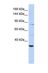 NBP1-57661 - AHNAK2
