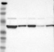 NBP1-88419 - AHA1 / AHSA1