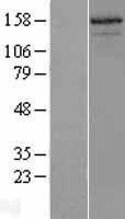 NBL1-13517 - AIB1 Lysate